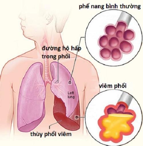 Trẻ bị viêm phổi - mô hình