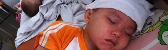 Dấu hiệu phân biệt trẻ bị sởi và các bệnh phát ban khác