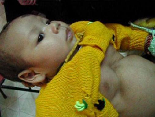 trẻ bị viêm phổi - rút lõm lồng ngực