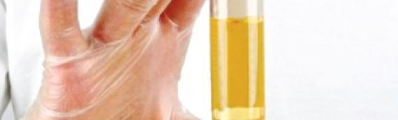 Các xét nghiệm tầm soát cần làm trước khi mang thai để tránh các bệnh di truyền