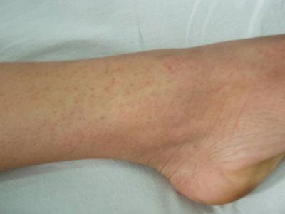 Bệnh sốt xuất huyết 2