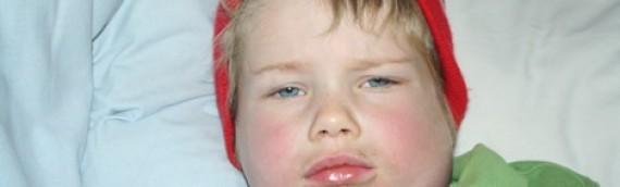 Trẻ bị quai bị: Nguyên nhân, cách điều trị và chăm sóc tại nhà
