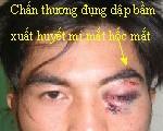 Xử trí khi trẻ bị chấn thương mắt 1
