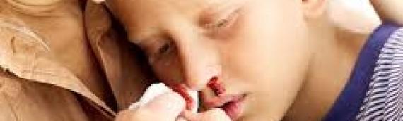 Đừng xem thường khi trẻ hay bị chảy máu cam sau khi ngủ dậy